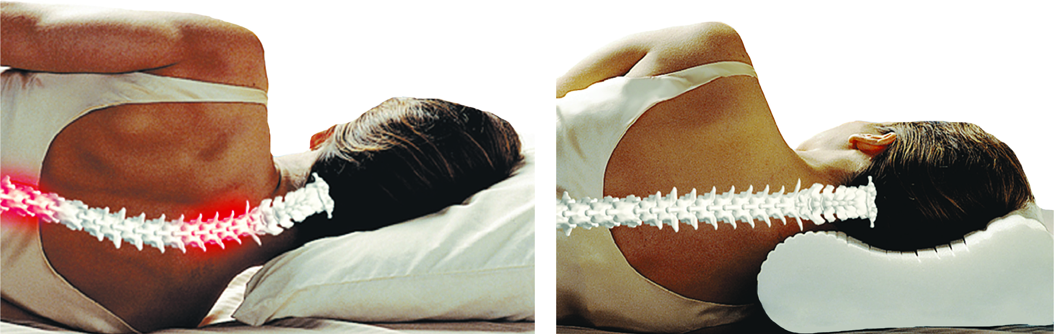 Cervical_Pillow-Before_After